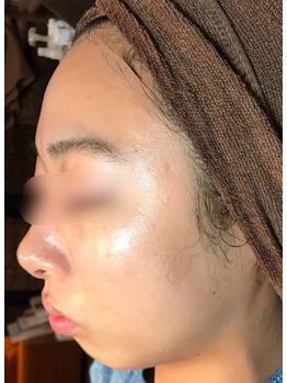 顔のクレーター、シミ、ニキビ痕にグリーンピール_20181215_2