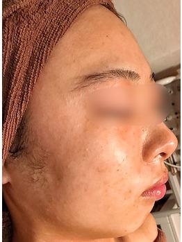 顔のクレーター、シミ、ニキビ痕にグリーンピール_20181215_3