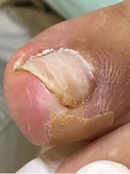 巻き爪と陥入爪の違い_20171003_2