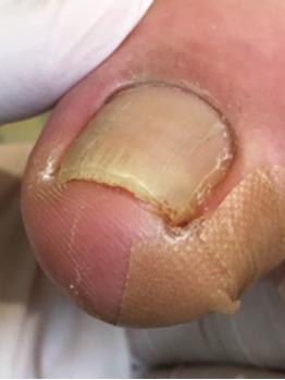 巻き爪と陥入爪の違い_20171003_3