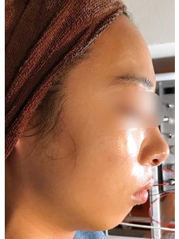 顔のクレーター、シミ、ニキビ痕にグリーンピール_20181215_4