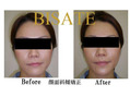 顔の歪みの改善矯正