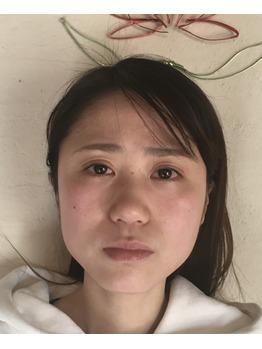 小顔コルギの効果♪_20190619_1