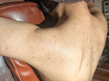 二の腕と肩の毛孔性苔癬とニキビ痕にグリーンピール_20200226_3