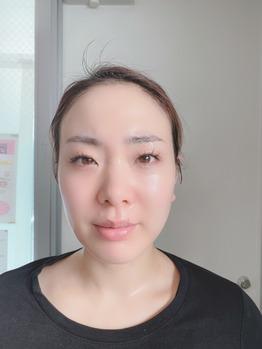 新アイテム★ホームケア用リフトアップマシン_20200130_1