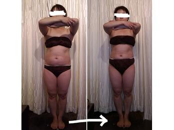 筋膜リリース痩身の結果♪_20201111_4