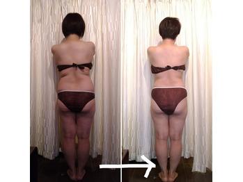 筋膜リリース痩身の結果♪_20201111_2