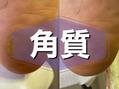 踵中央の角質