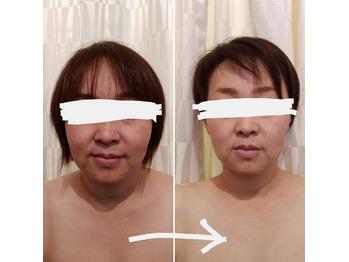 筋膜リリース美顔コースのビフォーアフター_20210525_1
