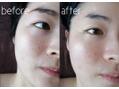 真皮層ケアを続ければ肌が変わる、透明感&毛穴レス