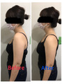 筋膜リリースで肩こり改善♪