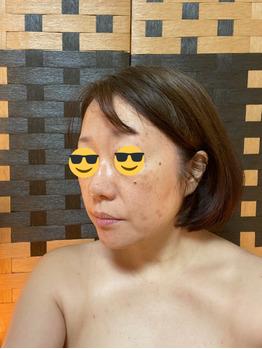グロースファクターフェイシャル before after_20191222_3