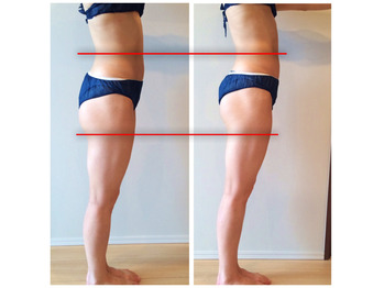 【骨盤矯正】 お尻の位置を上げる・小尻にする方法_20171202_3