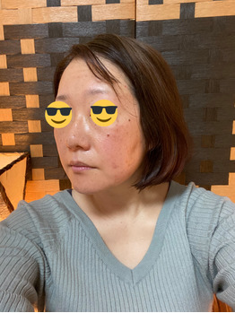 グロースファクターフェイシャル before after_20191222_4