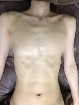 デコルテ/胸/お腹のニキビ/ニキビ痕/黒ずみココティー_20191014_2