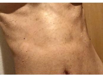 デコルテ/胸/お腹のニキビ/ニキビ痕/黒ずみココティー_20191014_3