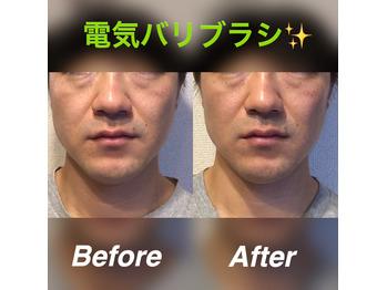 小顔矯正専門店がデンキバリブラシを使ってみた?!_20201102_1