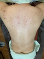 男性(メンズ)背中のニキビ/ニキビ痕にココティー