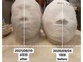 石膏パック3回目の比較