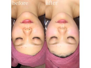 小顔調整の効果_20191126_2