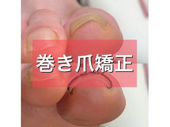 巻き爪矯正_20201127_1