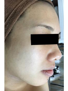 アトピ性皮膚炎/ニキビ/ニキビ痕/にはココティー_20190212_3