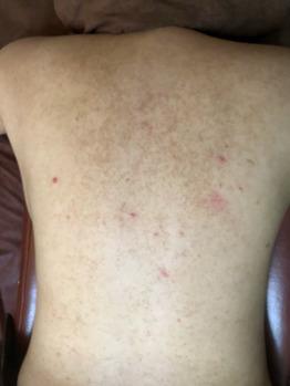 背中/肩/二の腕の毛孔性苔癬/毛孔性角化症ココティー_20190904_1
