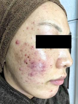 化膿したニキビ/ニキビ痕/毛穴の開きハーブピーリング_20200202_2