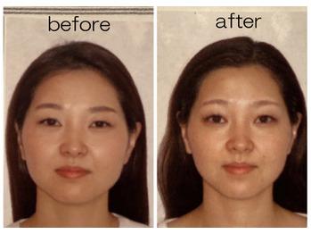 数回の施術でお顔が一回り小さくなりました♪_20210719_1