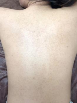 背中/肩/二の腕の毛孔性苔癬/毛孔性角化症ココティー_20190904_4