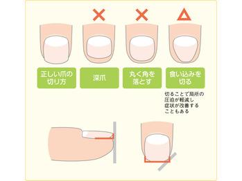 【子供の足トラブル】巻き爪の対処法!_20200109_3