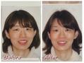 4回の施術で首・お顔の歪みがこんなに改善しました!