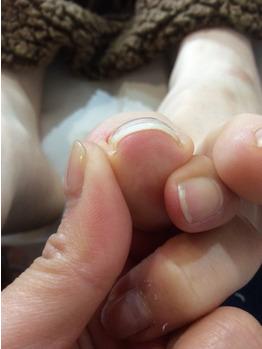 京都発:巻き爪が気になる!?隠れ巻き爪って?_20210518_1