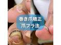 巻き爪矯正爪フラ法