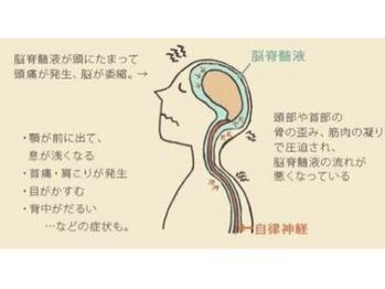 頭蓋骨調整~脳脊髄液を流す★_20190329_1