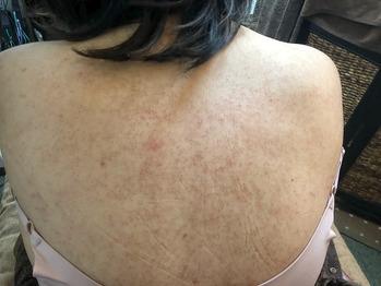 背中の毛孔性苔癬/毛孔性角化症グリーンピールボディ_20190904_2