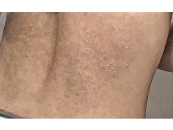 背中の毛孔性苔癬/毛孔性角化症グリーンピールボディ_20190904_3