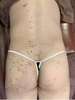 お尻のニキビ痕/掻きむしり痕/色素沈着グリーンピール_20200612_2