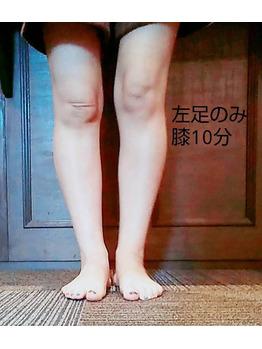 驚きの効果☆_20180916_1