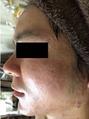 【男性】赤ら顔/ニキビ/ニキビ痕にグリーンピール