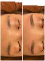 レディースの眉毛Wax脱毛