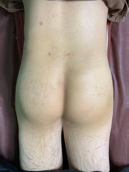 お尻のニキビ痕/掻きむしり痕/色素沈着グリーンピール_20200612_3