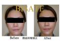 顔の歪み、お顔の肌のお手入れは今の内に整えましょう