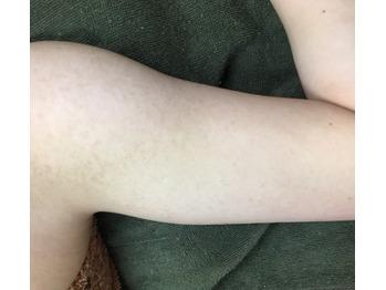 毛孔性苔癬(もうこうせいたいせん)改善グリーンピール_20190102_3
