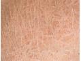 秋のゆらぎ肌が肌を老化させる!