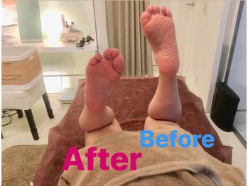 脚のダルさ、浮腫み、頑固な肩こり!これでオサラバ!_20180530_1