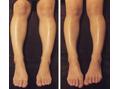 脚のむくみを解消させるとスッキリ細くなります。