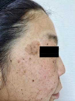 老人性イボ(脂漏性角化症)シミ/くすみグリーンピール_20190305_2