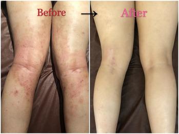 アトピー性皮膚炎で肌の水分量が減少!グリーンピール_20200721_1