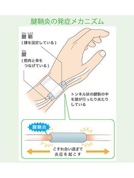 腱鞘炎について_20200929_1